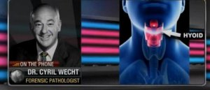 "Dr. Cyril Wecht on Epstein Death: ""Have Not Seen"" Multiple Fractures in ""Simple Leaning Into Suicide Hanging"" In Over 20,000 Autopsies (VIDEO)"